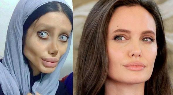 Angelina Jolie'ye benzemek istedi ama...